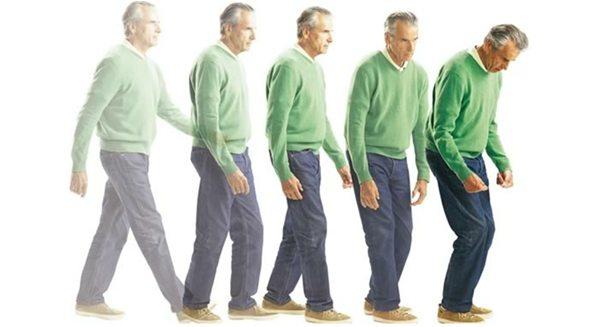 Esperanza de vida Parkinson