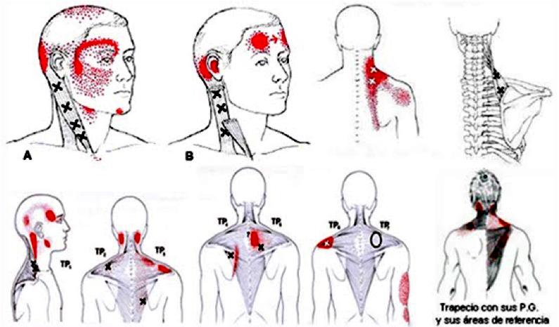 puntos gatillo que dan dolor a la cabeza.jpg