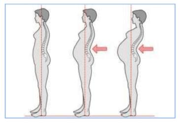 Curvatura columna vertebral embarazo