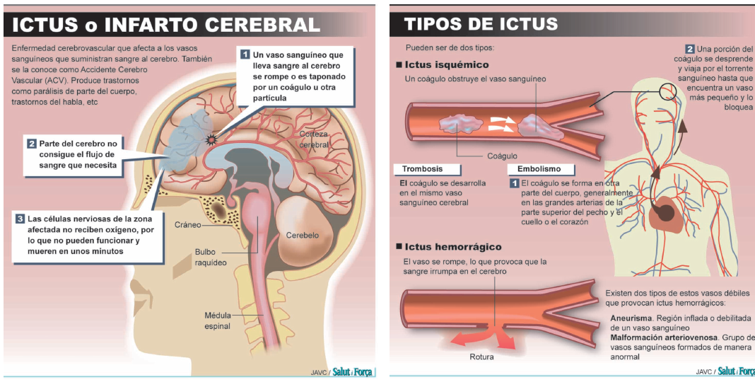 ictus tipos