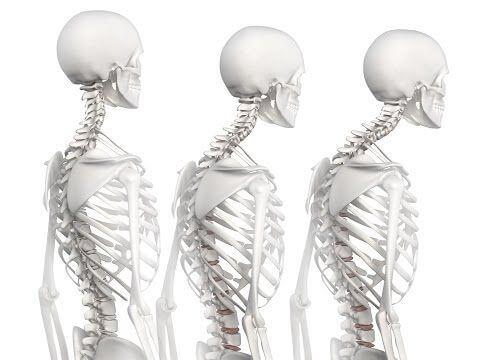 Dolor de Espalda por cargar niño a hombros Cabeza Adelantada