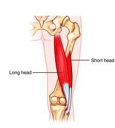 biceps femoral cabeza larga y cabeza corta