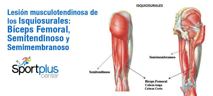 bíceps femoral, semimembranoso y semitendinoso