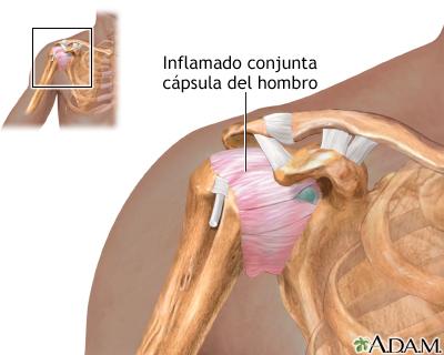 tendinitis-hombro